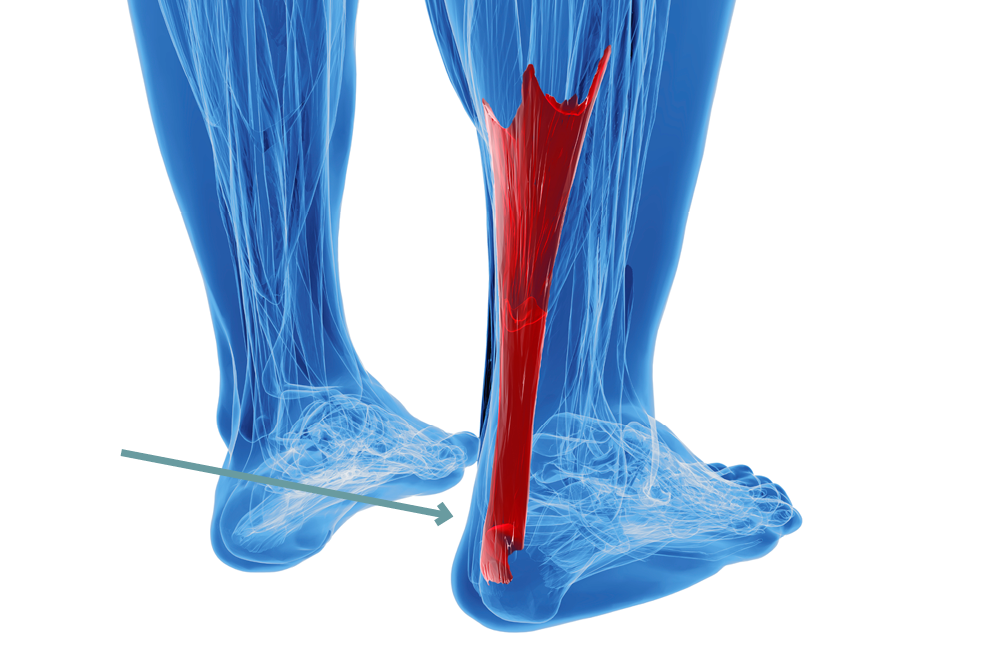 achilles tendon pain: find out if yours is tendonitis or, Human Body