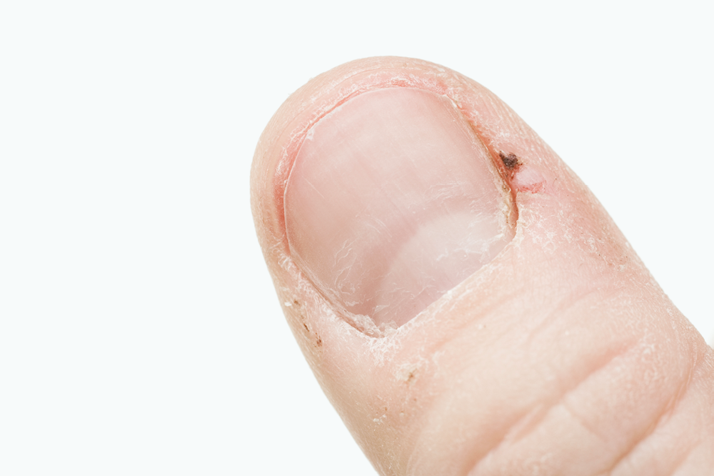 The Five Most Effective Home Remedies For Hangnails | Footfiles