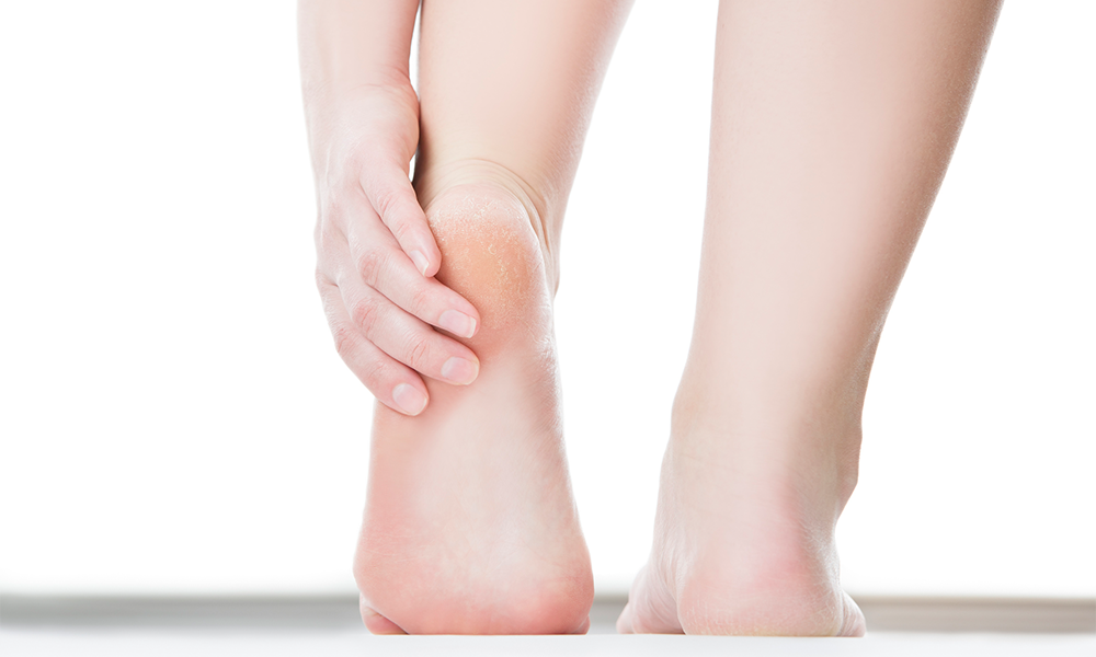 Are Your Calluses Actually A Sign Of Cancer? | Footfiles