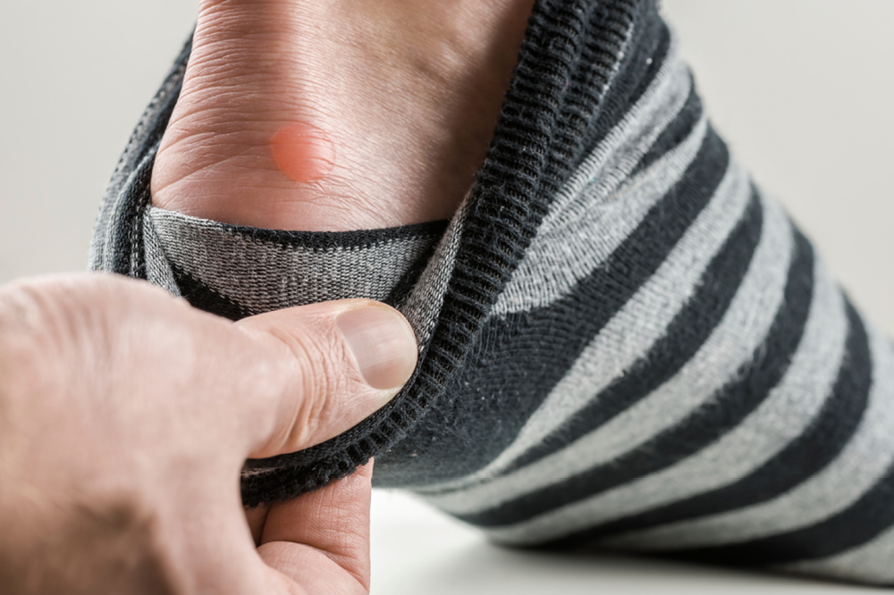 how to help foot blisters