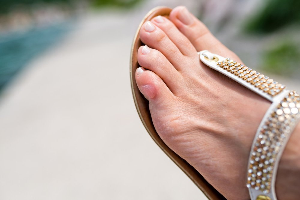 how to avoid blisters from heels