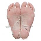 Skin peeling from the use of Baby Foot Peel