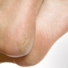 Skin cracks on heels