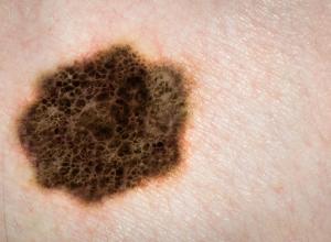 what is acral lentiginous melanoma #10