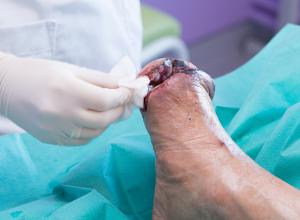 Buerger's Disease: Symptoms, Causes, Treatment, Prevention | Footfiles