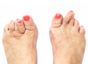 Deformed Foot