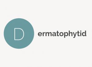 Dermatophytid Definition