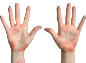 Eczema on the hands and wrists