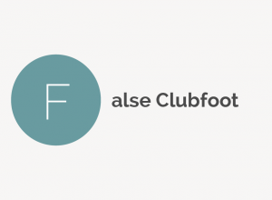 False Clubfoot Definition