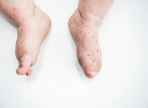 Baby With Sores Caused By Hand, Foot And Mouth Disease