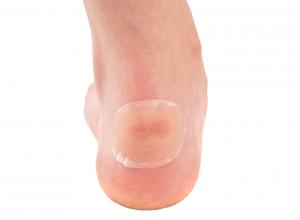 Hydrocolloid Bandage