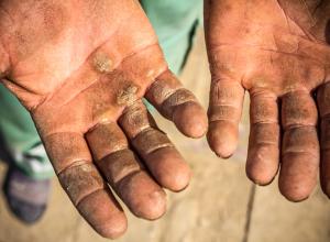 Hyperkeratosis shown on a man's palms