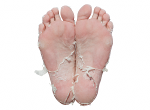 Skin peeling from the use of Baby Foot Peel