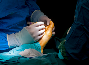 Cheilectomy Surgery: What It Is, What To Expect