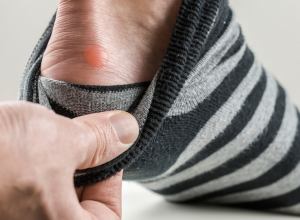 How to Get Rid of a Foot Blister