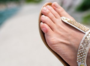 How To Prevent Blisters On Feet And Toes