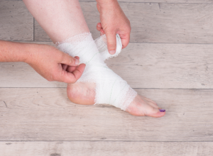 How to Treat an Injured Ankle or Ankle Sprain