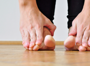 Splay Foot Symptoms And Treatment Exercises