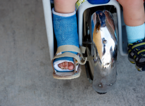 Care Of Casts and Splints, Tips For Wearing, And Healing
