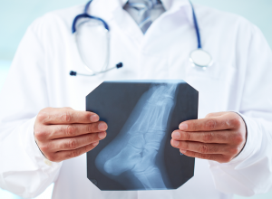 What Is A Podiatrist and What Does A Podiatrist Do