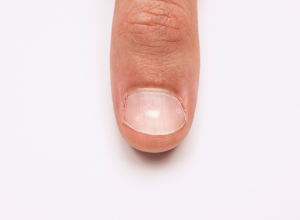 Keratin Granulation on a Fingernail