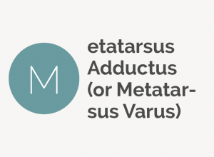 Metatarsus Adductus or Metatarsus Varus Defintion
