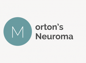 Morton's Neuroma Definition