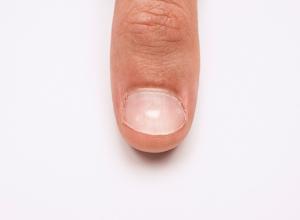 Muehrckes Nails