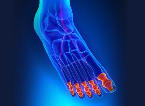 Bones in the Toes