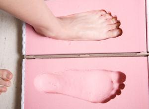 Flat Feet (Flat Foot, Pes Planus): Symptoms, Causes, Treatment