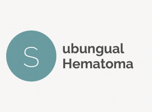 Subungual Hematoma Definition