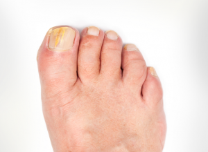 yellow toenails indicating onychomycosis