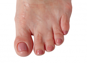 Webbed Toes