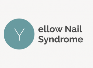 Yellow Nail Syndrome Definition