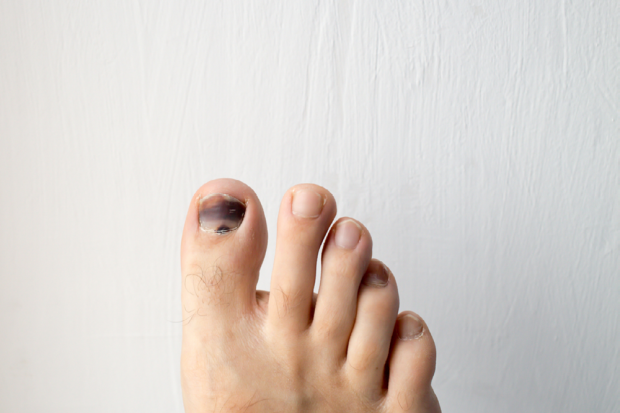 Black Toenail: Causes, Treatment, Grow Out | Footfiles