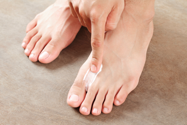 How to Cure Athlete's Foot