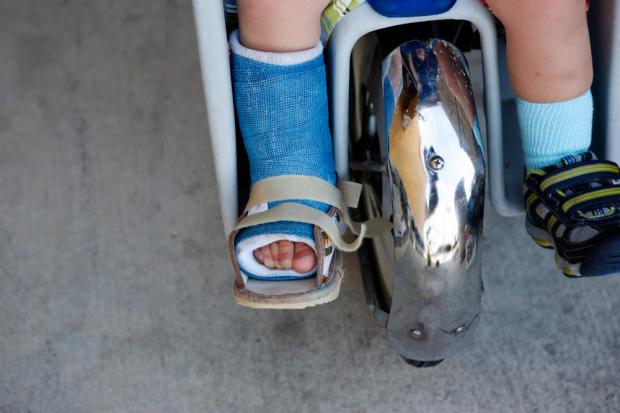 Child Wearing a Foot Brace