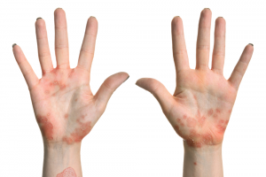 Eczema on the hands and wrists